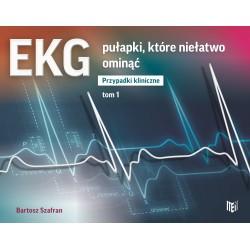 EKG pułapki, które niełatwo ominąć. Przypadki kliniczne Tom 1