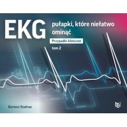 EKG pułapki, które niełatwo ominąć. Przypadki kliniczne Tom 2